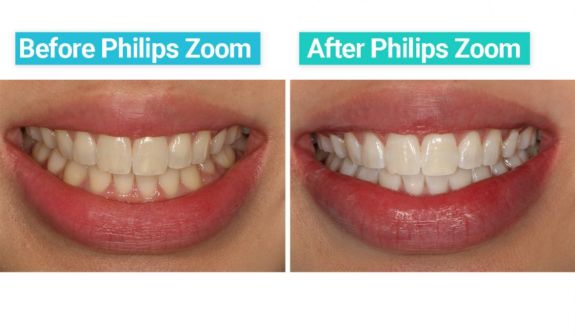 Pairing Teeth Whitening With Spa Treatment Now That S A First