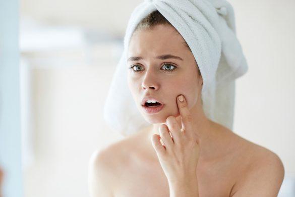 Skin-congestion-breakouts-main